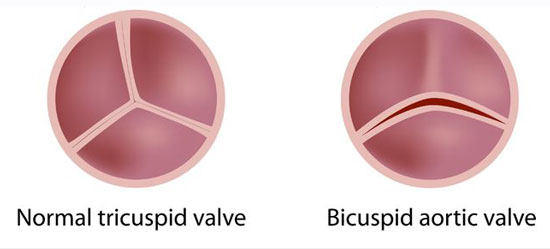 bicuspid-aortic-valve-normal-tricuspid
